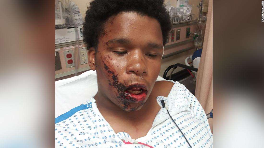 A Bronx teenager suffered facial fractures after the NYPD allegedly cursed him, a lawyer told CNN