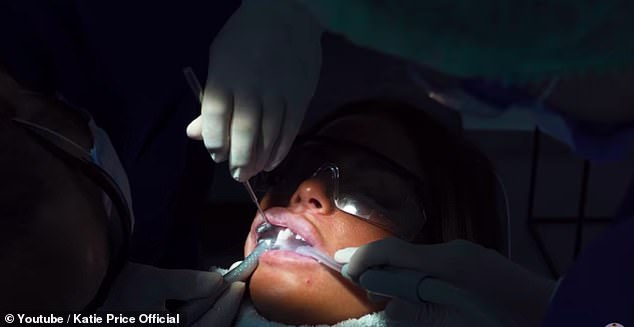 Work in progress: The mother-of-five's YouTube video showed the dentist shaving down her teeth so that the veneers could be fitted